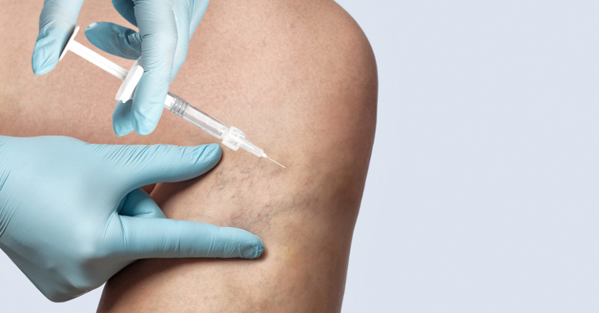 How to find out if your veins need Sclerotherapy?